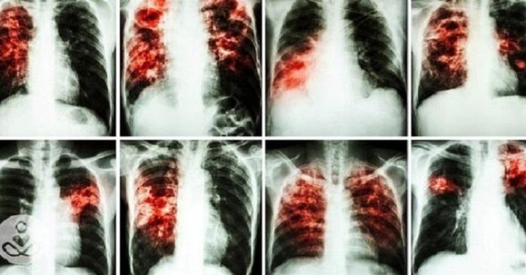«Είναι Πιο Καρκινογόνα Και Από Το Κάπνισμα Και Τα Χρησιμοποιούμε Όλοι Μας Καθημερινά» Δεν πάει το μυαλό σας!