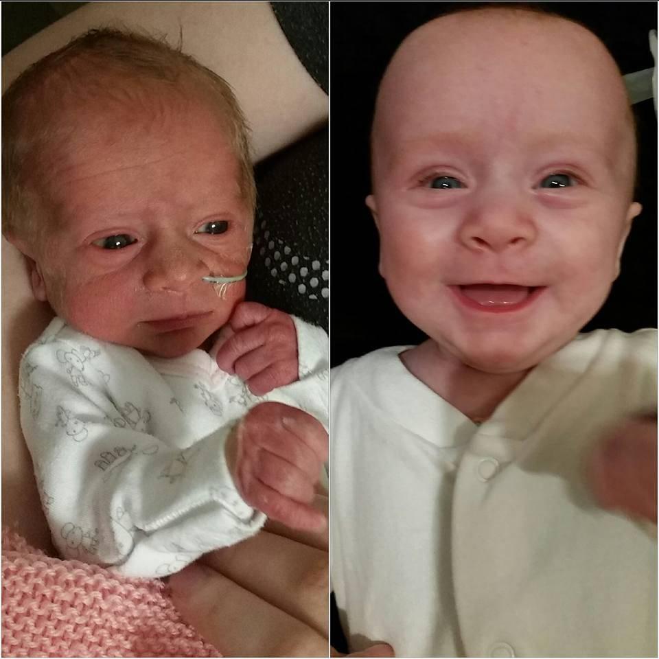 Πρόωρο_ μωρό_ χαμογελάει_