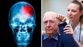 Μικρό εγκεφαλικό επεισόδιο- Συμπτώματα και τρόποι πρόληψης!