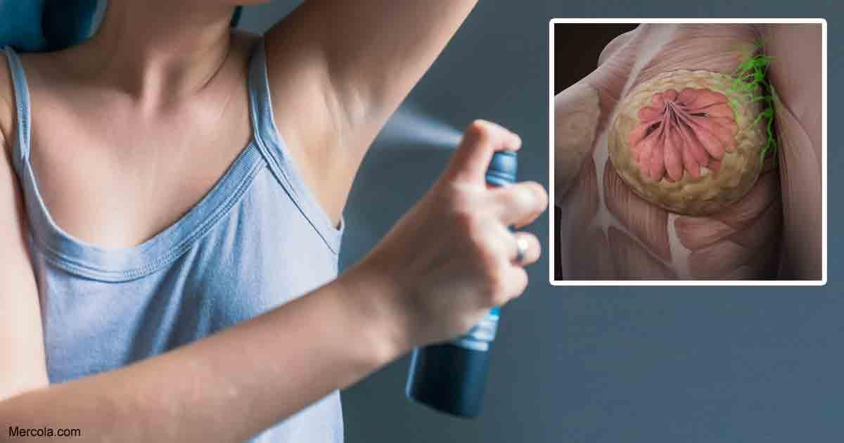 Καρκίνος του Στήθους: Πρόληψη ως και το 90% των Περιπτώσεων μέσα από 12 καθημερινές συνήθειες