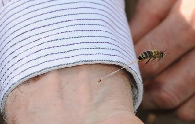 Τα πράγματα sos που πρέπει να κάνετε αν τσιμπήσει το παιδι μέλισσα, τσούχτρα, σκορπιός ή φίδι