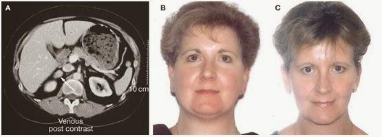 Σύνδρομο Cushing: Η νόσος που διακρίνεται από την αύξηση βάρους και την εύκολη κόπωση- Δείτε όλα τα συμπτώματα