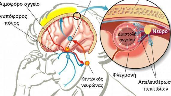 Ημικρανίες: Ποια η διαφορά από τον πονοκέφαλο – Τι τις προκαλεί – Πως θα ανακουφιστείς