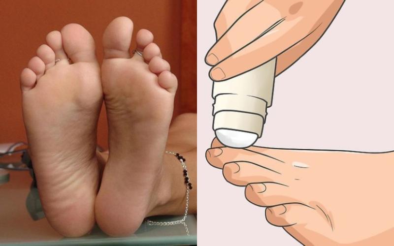 Δυσοσμία των ποδιών: 11 τρόποι για να απαλλαγείτε από το πρόβλημα μια για πάντα!
