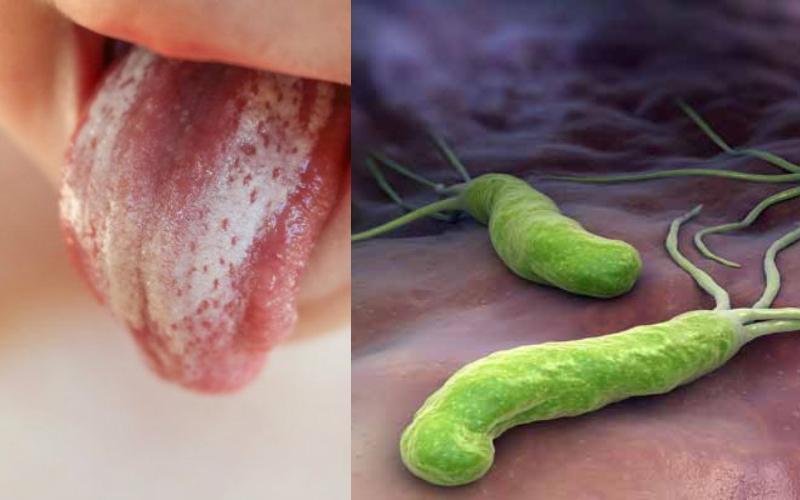 Ελικοβακτηρίδιο του πυλωρού ή αλλιώς βακτήριο στομάχου: Τι μπορεί να προκαλέσει και συμπτώματα.Προσοχή είναι μεταδοτικό!