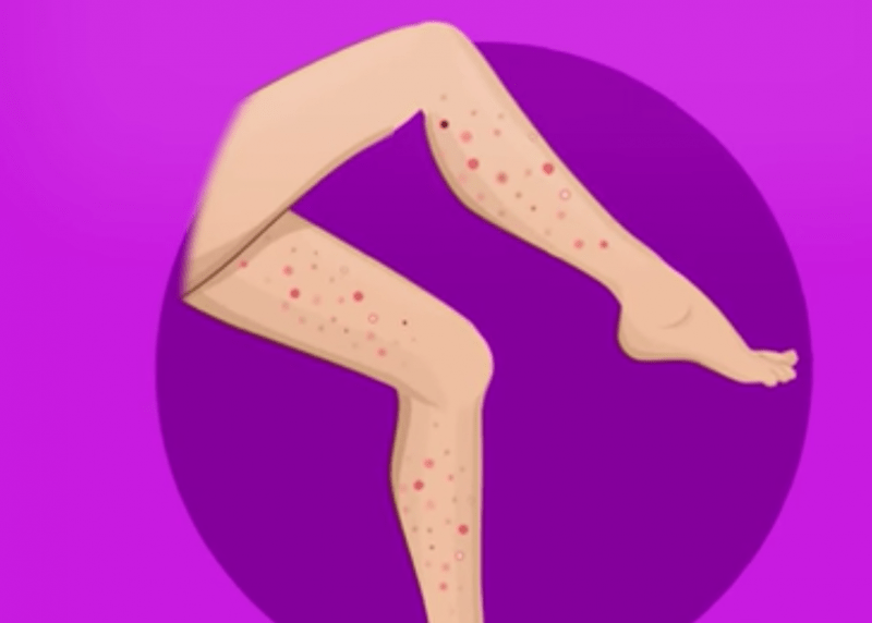 Έχετε σπυράκια στα παρακάτω σημεία του σώματός σας; Δείτε τι μπορεί να σημαίνει για την υγεία σας σε κάθε περιοχή!