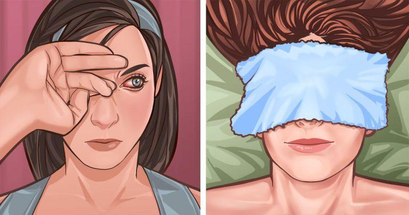 Εχέτε φαγούρα στα μάτια ; Δείτε εδώ όλες τις πιθανές αιτίες και πως να το αντιμετωπίσετε
