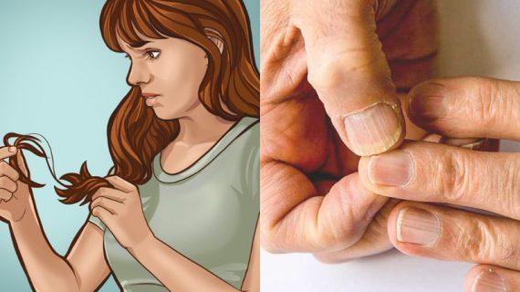 Δείτε τα 10 κοινά συμπτώματα ανεπάρκειας του ιωδίου
