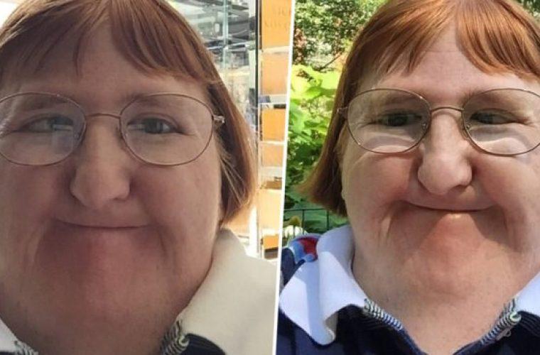 Της είπαν πως είναι άσχημη και δεν μπορεί να ανεβάζει φωτογραφίες και αυτή απάντησε με selfies!