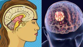 Μηνιγγίωμα: Πόσο επικίνδυνο είναι; Τα 7 συμπτώματα που δεν πρέπει να αγνοήσετε