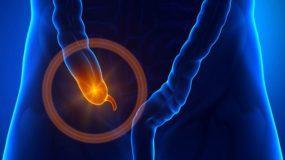 Σκωληκοειδίτιδα: Όλα τα συμπτώματα για να την αναγνωρίσετε