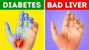 7 Σημάδια στα χέρια που πρέπει να προσέξουμε- Ποιες παθήσεις κρύβονται