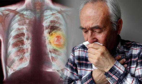 Καρκίνος του πνεύμονα:Αν δείτε αυτό στο φλέγμα σας Δείτε άμεσα το γιατρό σας!