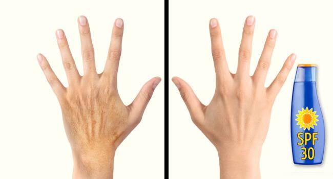 Ταλαιπωρημένα και κουρασμένα χέρια; Κρατήστε τα νεανικά με αυτά τα 5 πολύτιμα κόλπα!