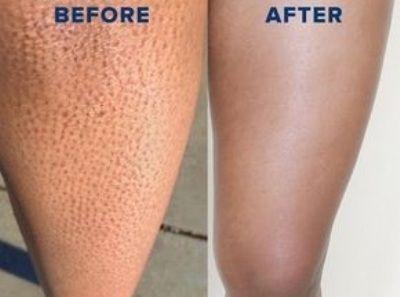 5 Αποτελεσματικές και ανέξοδες τεχνικές για να απαλλαγείτε από τα ερεθισμένα και σημαδεμένα πόδια μετά το ξύρισμα!