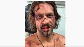 Ο Γιάννης Σπαλιάρας με αίματα και μελανιές μετά από ξυλοδαρμό (εικόνα)