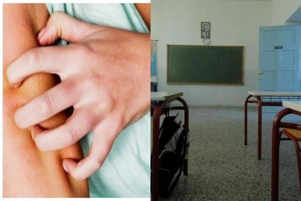 Κρούσματα ψώρας σε μαθητές Γυμνασίου και Λυκείου- Όσα πρέπει να γνωρίζετε για την πάθηση