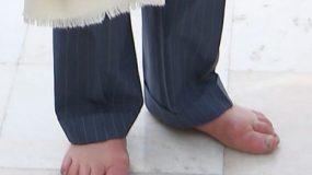 Σάλος από τα πρησμένα άκρα του πρίγκιπα Καρόλου -Από τι μπορεί να πάσχει (εικόνες)