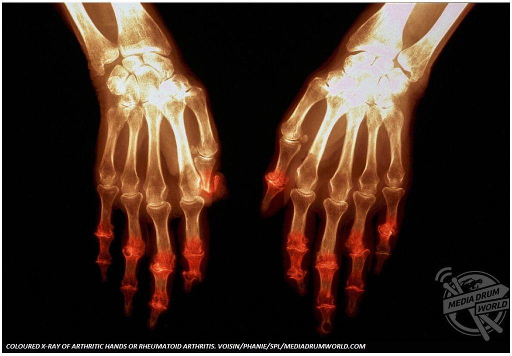 Αυτό είναι το χρώμα του πόνου:Οι πιο σοβαρές ασθένειες μέσα από φωτογραφίες
