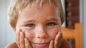 Δρ Τάσος Σέρμπης: Γιατί τα παιδιά στην Ελλάδα νοσούν φέτος το χειμώνα από σταφυλόκοκκο, την αρρώστια του καλοκαιριού!