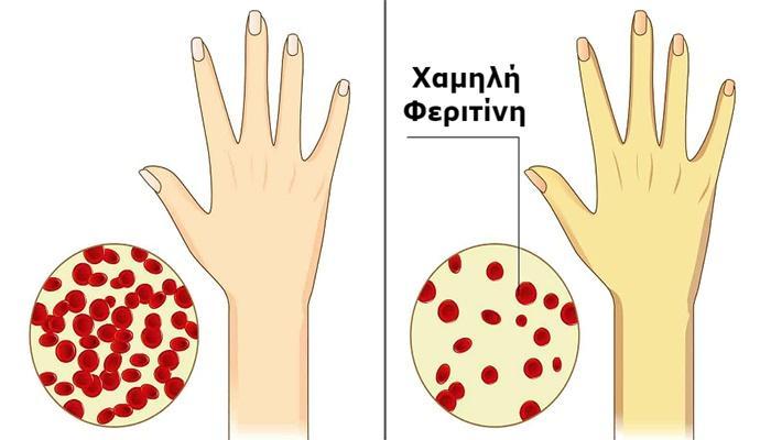 Τι είναι η φερριτίνη στο αίμα και με ποιες τροφές θα την αυξήσουμε;