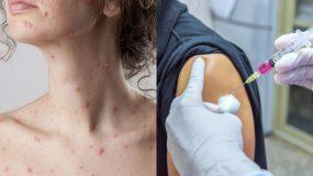Ιλαρά στους ενήλικες- Ποια είναι τα συμπτώματα και οι κίνδυνοι; Σε τι διαφέρει με την ιλαρά στα παιδιά;