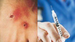 Δερματική & Αναπνευστική Διφθερίτιδα: Επανακάμπει; -Έλλειψη εμβολίων τα τελυταία χρόνια