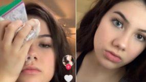 Επικίνδυνο challenge στο TikTok: Έφηβοι βάζουν χλωρίνη στα μάτια για να αλλάξουν το χρώμα τους!