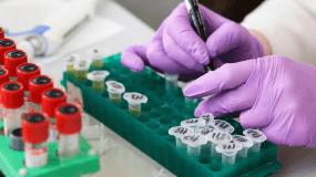 Κορονοϊός: Αυτές οι ομάδες αίματος είναι πιο ευάλωτες στον ιό