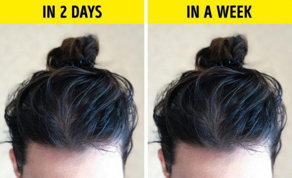 Δείτε τους 7 λόγους που τα μαλλιά σας γίνονται λιπαρά τοσο γρήγορα!