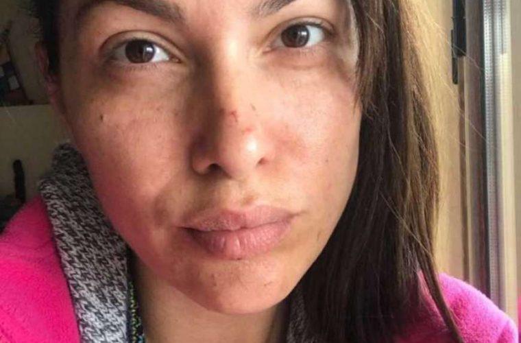 H Κλέλια Ρένεση με γρατσουνιές στο πρόσωπο: Το μήνυμα και η εξήγησή της