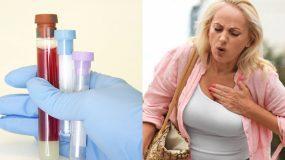 Κινάση κρεατίνης: Το ένζυμο που επηρεάζει την υγεία της καρδιάς - Ποιες είναι οι φυσιολογικές τιμές;