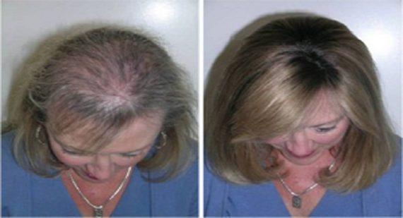Καστορέλαιο : Θαυματουργό για μαλλιά, βλεφαρίδες και φρύδια