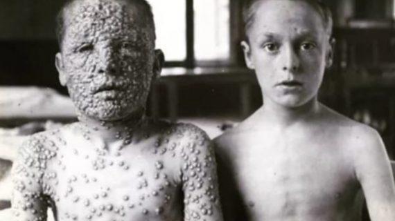 Και τα δύο παιδιά στη φώτο έχουν ευλογιά όμως μόνο το ένα εμβολιάστηκε - Η φωτογραφία που συγκλονίζει