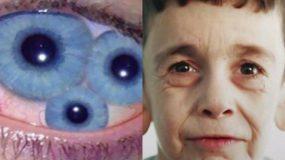 Δείτε τις 10 πιο παράξενες ασθένειες του κόσμου! Πάθαμε πλάκα!