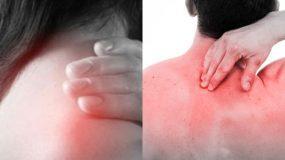 Ψύξη στον αυχένα: Τι την προκαλεί; Δείτε μορφές θεραπείας που θα σας ανακουφίσουν από τον πόνο