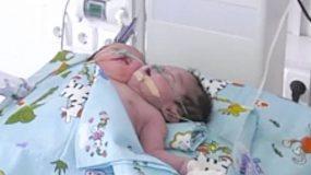 Γεννήθηκε βρέφος με δύο κεφάλια- Αγωνίζεται για να καταφέρει να ζήσει