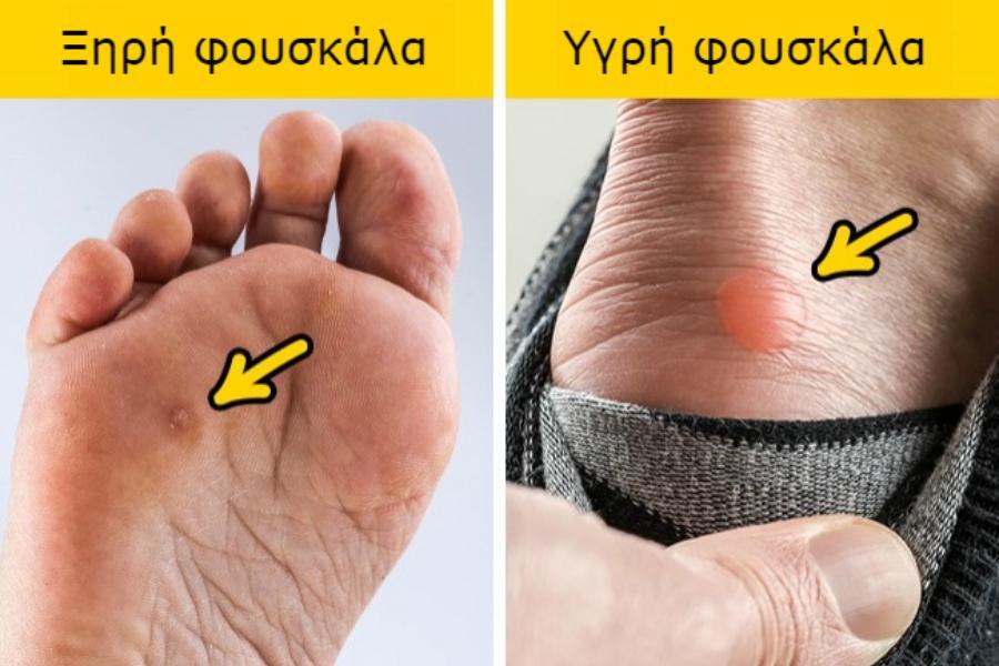Υποφέρετε από φουσκάλες στα πόδια; Βρήκαμε μερικές φυσικές θεραπείες που θα σας λύσουν το πρόβλημα!