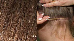 Πως να αφαιρέσετε την κόνιδα από το κεφάλι του παιδιού με 2 απλά υλικά-Έρευνες το επιβεβαίωσαν!