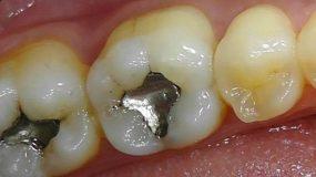 Τα μαύρα σφραγίσματα στα δόντια πρέπει να αντικατασταθούν! Ποια επικίνδυνη ουσία περιέχουν;