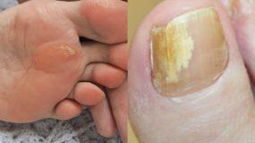 Κάλοι και μύκητες στα πόδια: Πως να απαλλαγείτε με 4 σπιτικές συνταγές