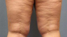 Βρήκαμε την δίαιτα που σε βοηθά να χάσεις κιλά και κυτταρίτιδα ταυτόχρονα!