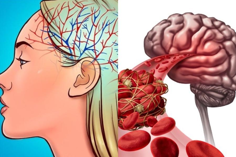 Τι είναι η εγκεφαλική εμβολή; Τα 6 ανησυχητικά συμπτώματα, οι κίνδυνοι & οι τρόποι θεραπείας