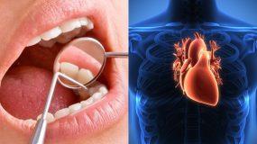 Μάθε τα πάντα για την νόσο που απειλεί όσους έχουν χάσει έστω κι ένα δόντι!