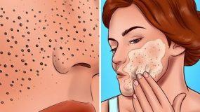 8 φυσικοί τρόποι να εξαφανίσετε τις ουλές και τα σημάδια στο δέρμα!