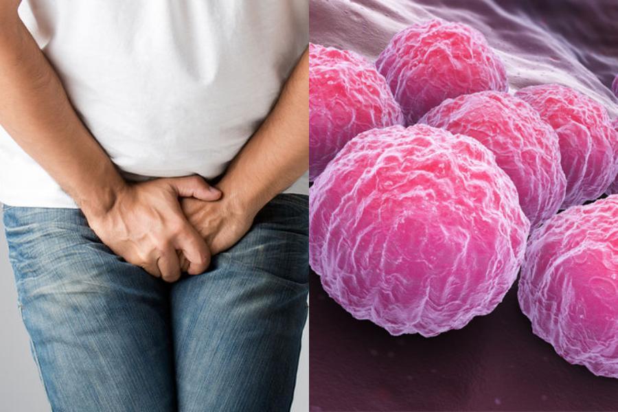 Τί είναι τα χλαμύδια & γιατί τα αθεράπευτα χλαμύδια είναι επικίνδυνα για την υγεία;