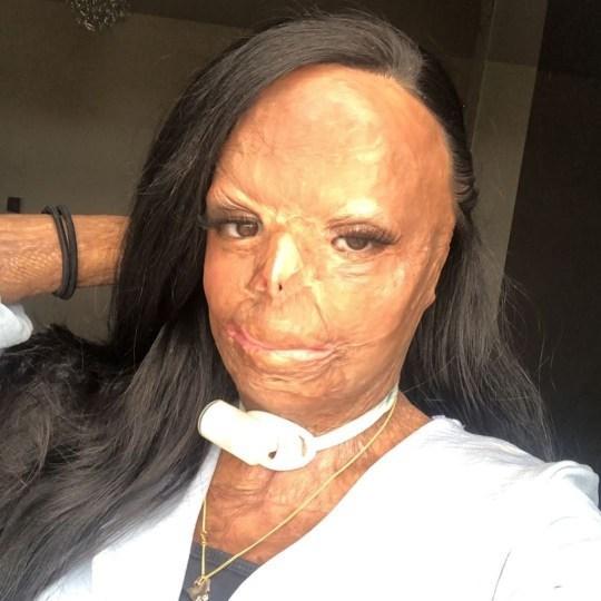 Η Aleema Ali μετά το ατύχημα με το φάρμακο για τις ψείρες