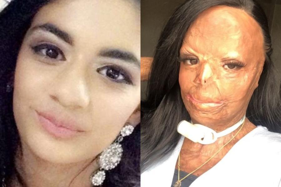 Άγνωστος κίνδυνος καραδοκεί πίσω από τα προϊόντα για τις ψείρες – Η ιστορία της έφηβης που σoκαρε