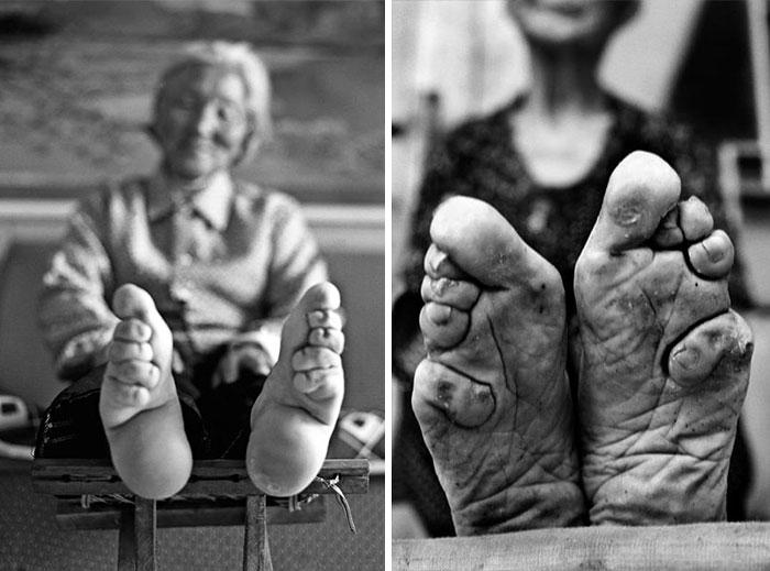 """30 Αδιανόητα πράγματα που οι γυναίκες έκαναν στο παρελθόν για να δείχνουν """"όμορφες"""" : τον 10ο αιώνα στην Κίνα δέσμευαν τα πόδια τους."""