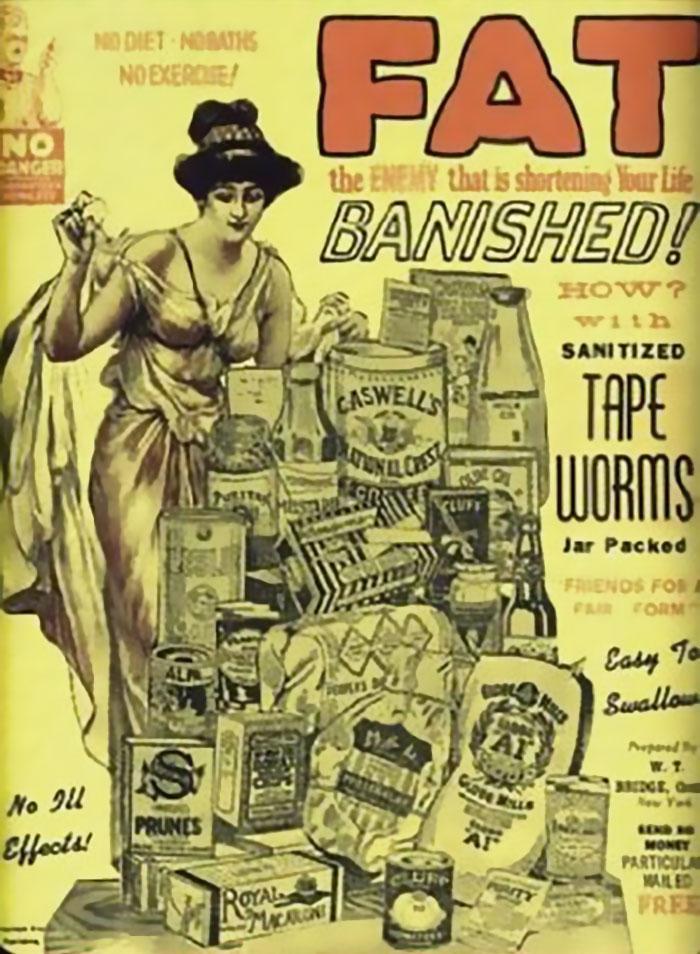 """30 Αδιανόητα πράγματα που οι γυναίκες έκαναν στο παρελθόν για να δείχνουν """"όμορφες"""" : Το 1900 προσπαθούσαν να χάσουν κιλά τοποθετώντας βδέλλες πάνω στο δέρμα τους!"""